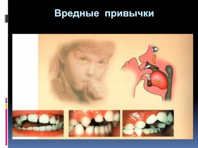 Zachem-ispravlyat-prikus - запись пользователя солнечная (jkzfkbcf) в сообществе воспитание, психология - от года до трех в категории всё о сосании соски, пустышки, пальчиков - babyblog.ru