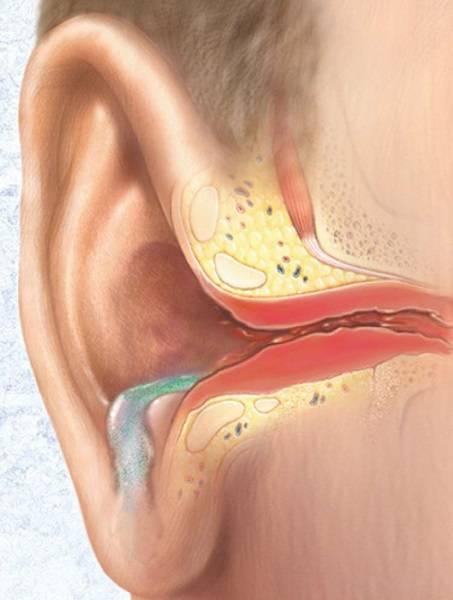 болезнь ушей