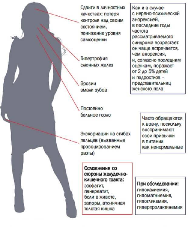 Булимия - лечение, симптомы, последствия