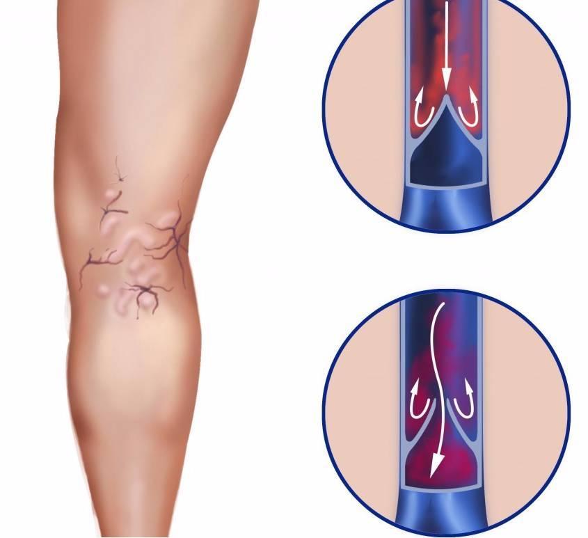 Лечение атеросклероза артерий