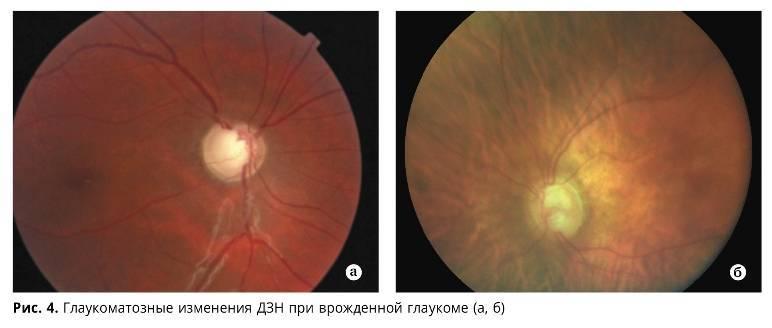 Глаукома у детей и ее последствия