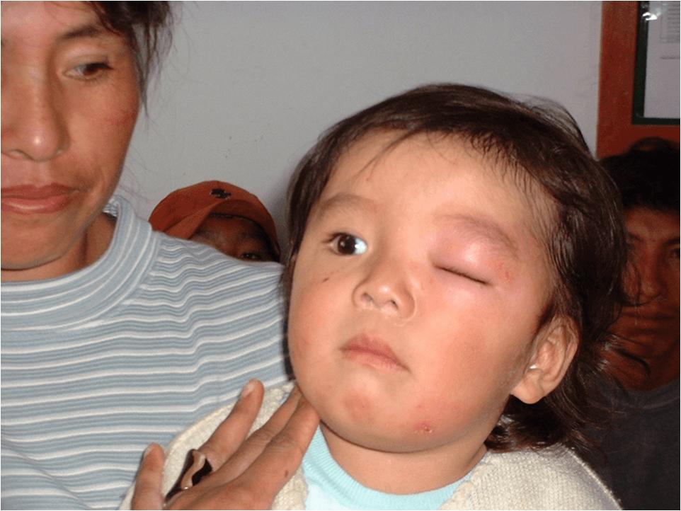 Болезнь шагаса: пути инфицирования, лечение и профилактика