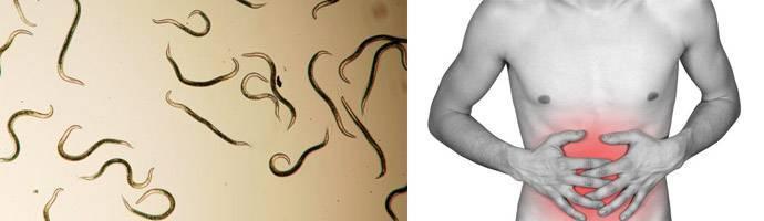 черви в животе
