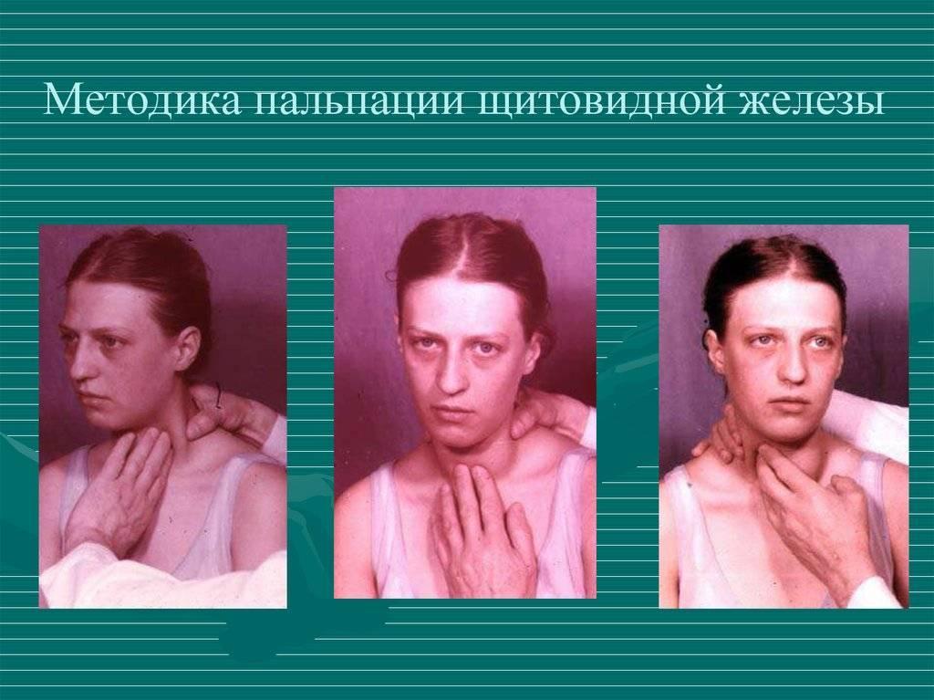 щитовидная железа в норме при пальпации