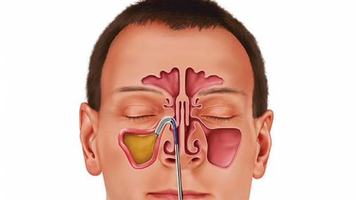 инфекция в носу чем лечить
