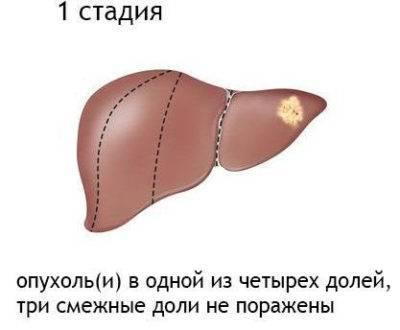 Рак печение, лечение рака печени народными средствами