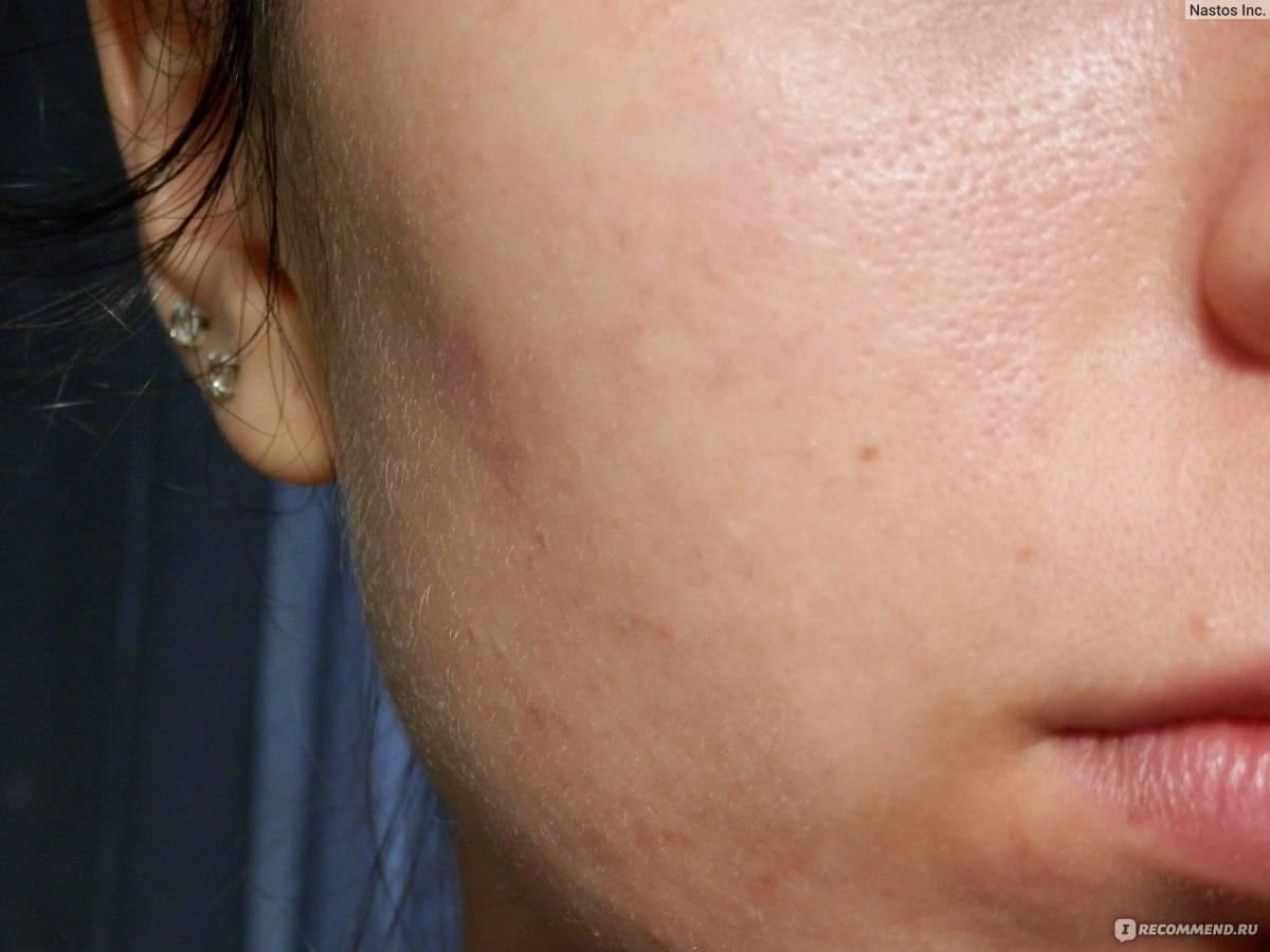 соскоб кожи лица