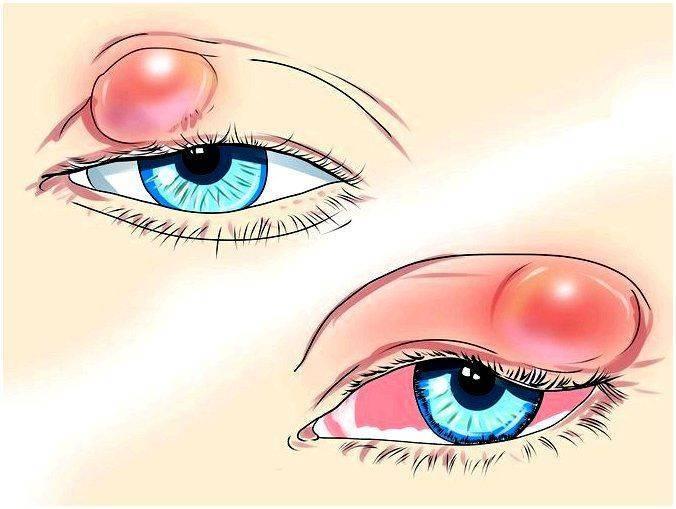 Ячмень на глазу при грудном вскармливании лечение