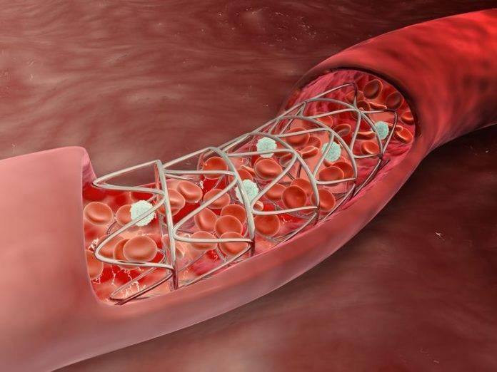 Атеросклероз аорты и коронарных артерий