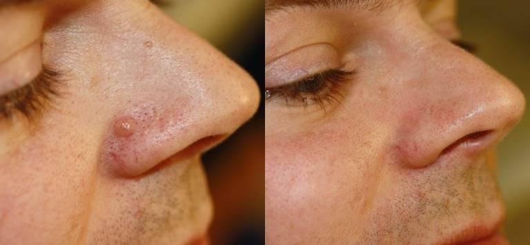 Как вывести бородавку на носу в домашних условиях?