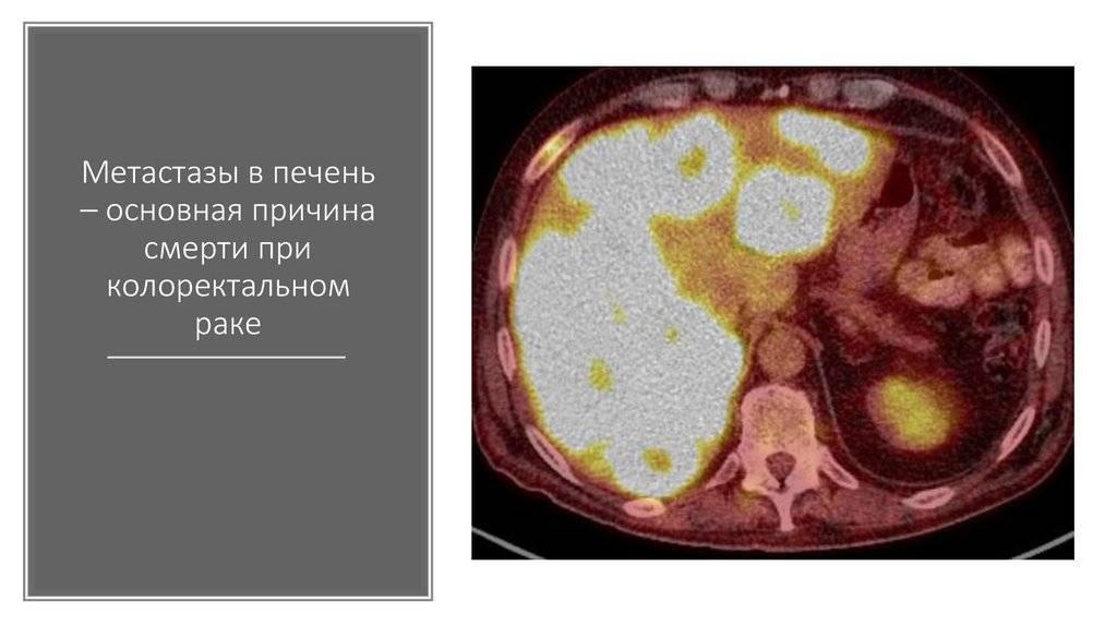 метастазы в печени прогноз