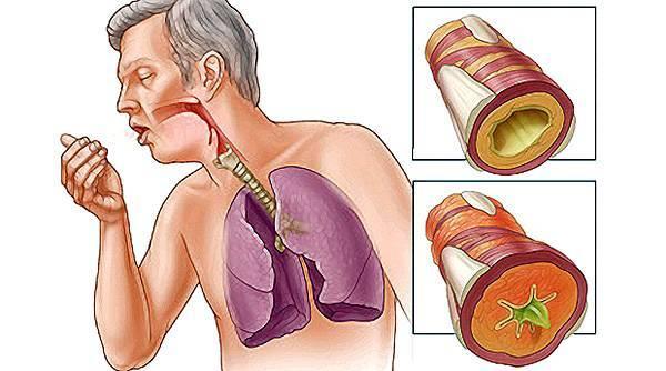 застарелый кашель чем лечить