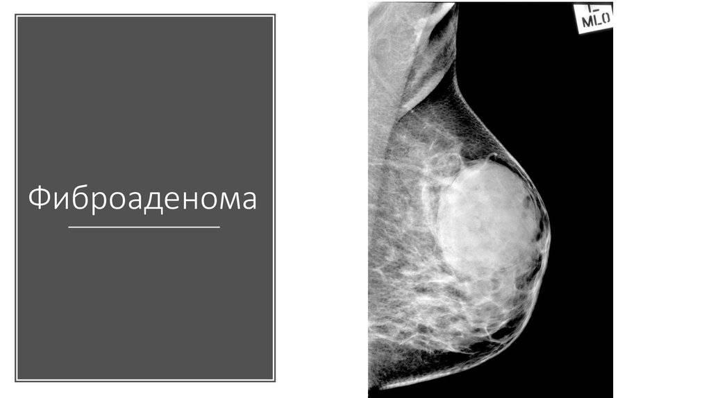 Фиброаденома и беременность