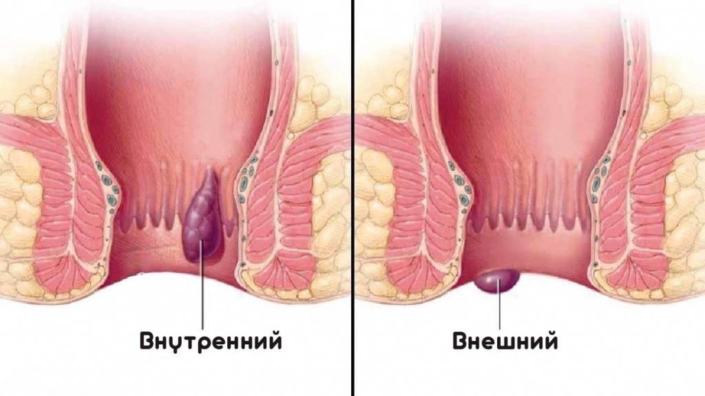 Воспаление геморроидальных узлов — лечение