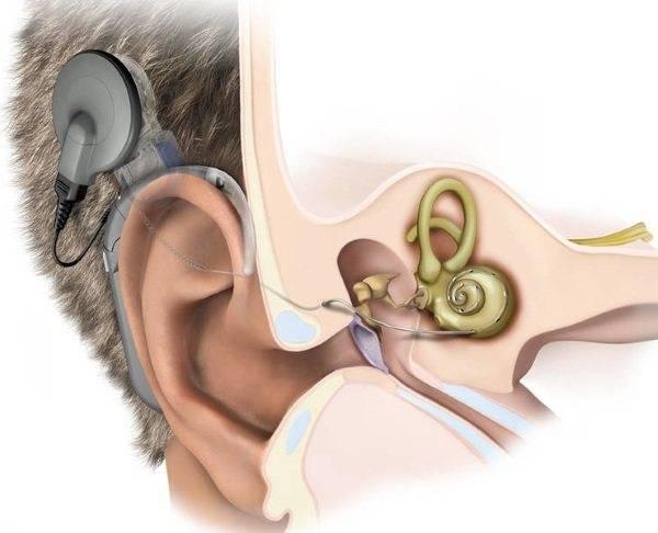 Неврит слухового нерва - причины, симптомы, диагностика, лечение и профилактика
