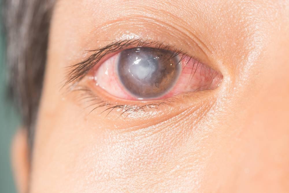 Кератит — симптомы и лечение воспаления роговицы глаза