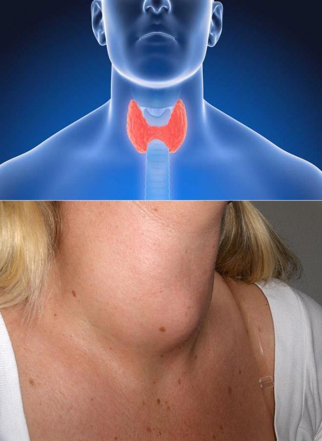 давит щитовидка что делать