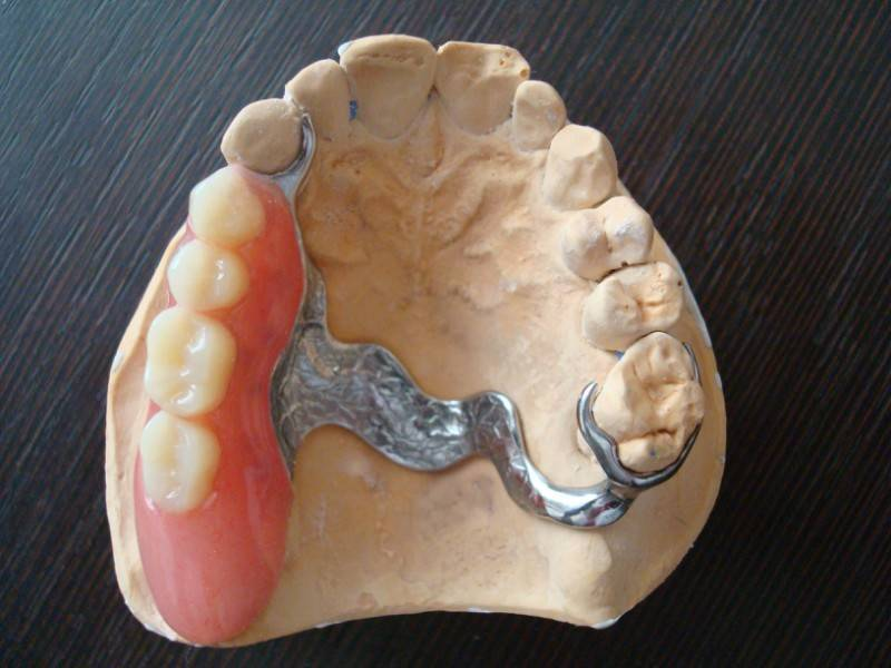 Бюгельный протез на верхнюю и нижнюю челюсть, цена в москве