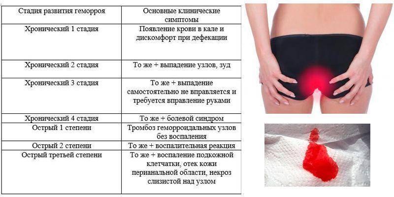 упражнения от геморроя у женщин