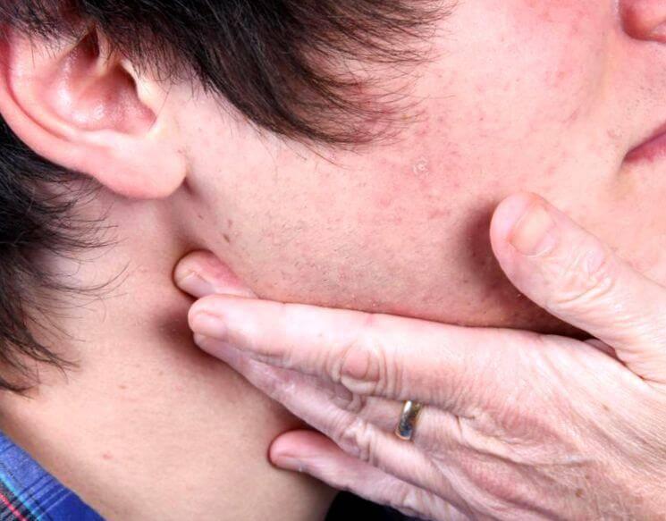 Воспаление лимфоузлов за ушами: лечение, причины