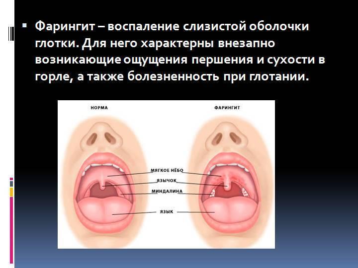 Фарингит у взрослых: симптомы, лечение и профилактика
