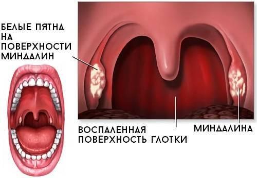 Фарингит при беременности: лечение, влияние на плод, отзывы