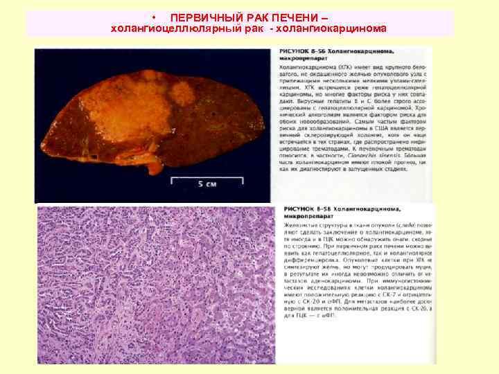 Холангиокарцинома