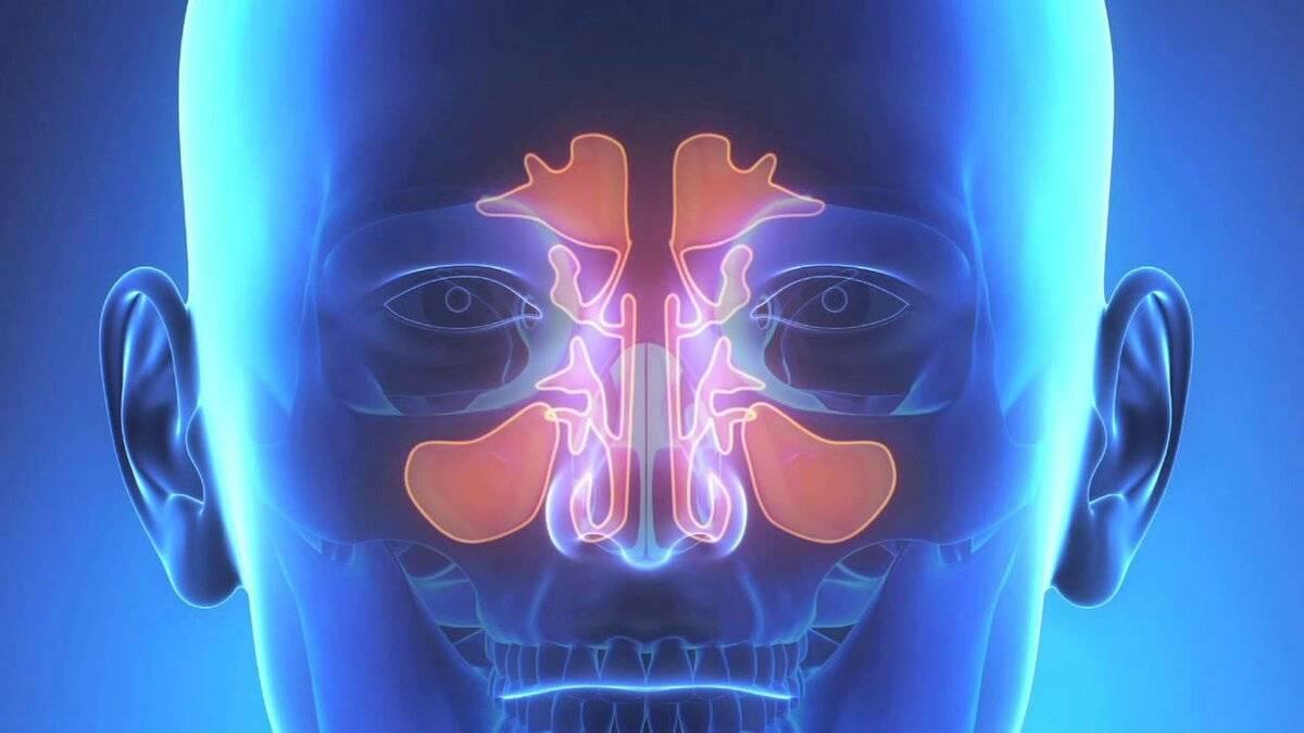 Как болит голова при гайморите: симптомы, лечение, первая помощь