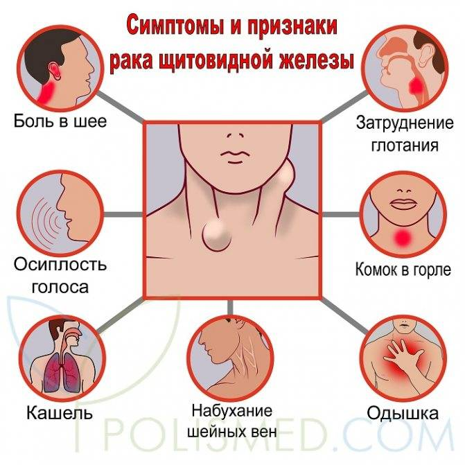 рак щитовидной железы у женщин