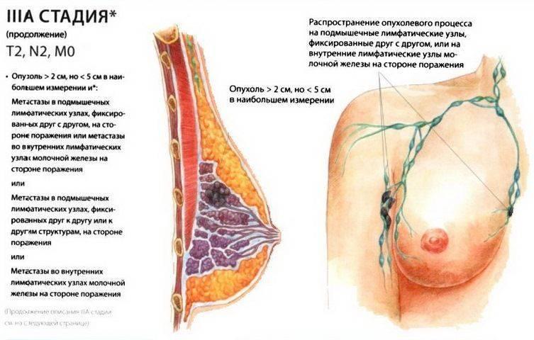 Жжение в грудине справа, слева и посередине — причины и что делать?
