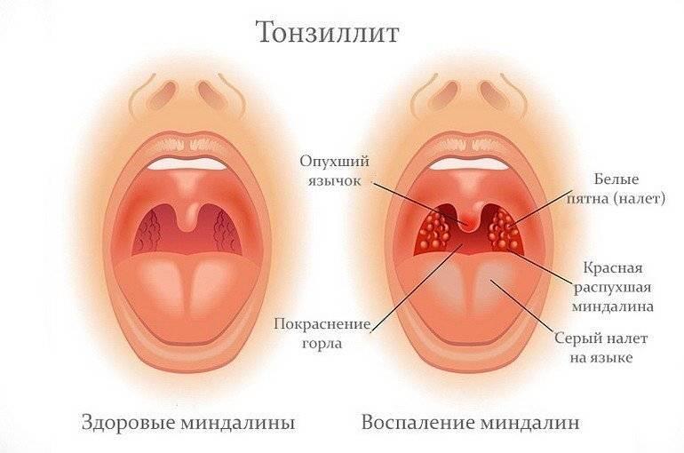 как снять отек горла при ангине