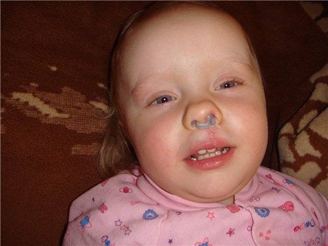 Зеленые сопли у ребенка: причины и правильное лечение
