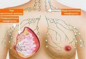 рак молочной железы 3 стадия