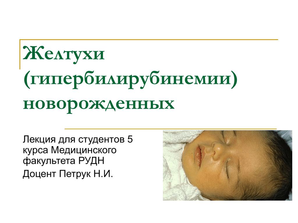 конъюгационная желтуха у новорожденных