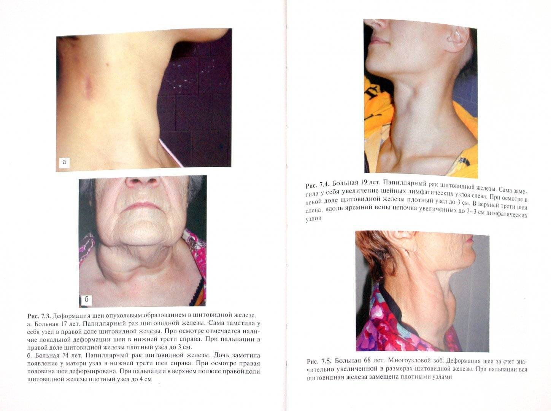 Удаление щитовидной железы – виды операций и жизнь после тиреоидэктомии