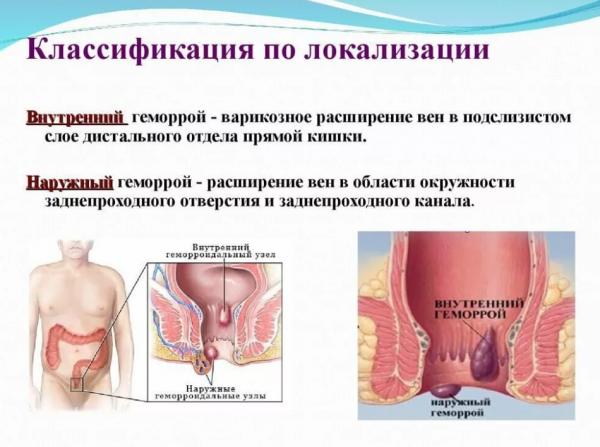 Пересмотр болезней по этиологии: геморрой код по мкб 10