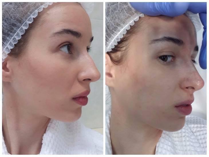 изменить нос без операции