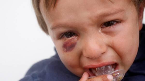 Травма носа - запись пользователя галина прокофьева (id2519297) в сообществе детские болезни от года до трех в категории все о травмах, царапинах, шишках,ушибах и порезах - babyblog.ru
