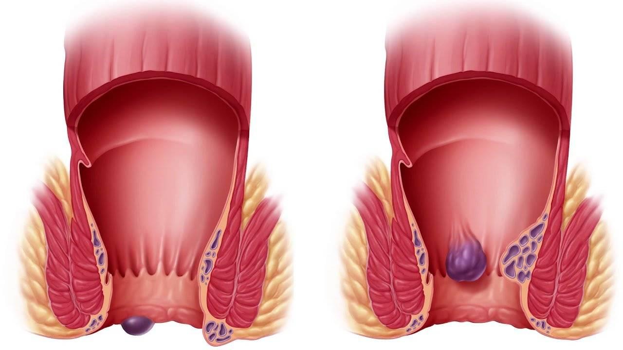 Геморрой 3 стадии – основные симптомы, особенности терапии, эффективные методы