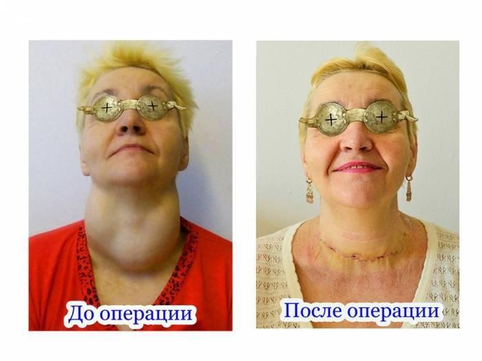 операция на паращитовидной железе