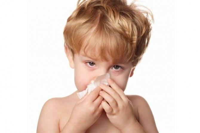 Синусит у детей: симптомы и лечение острой формы в домашних условиях, как и чем лечить двусторонний синусит, признаки
