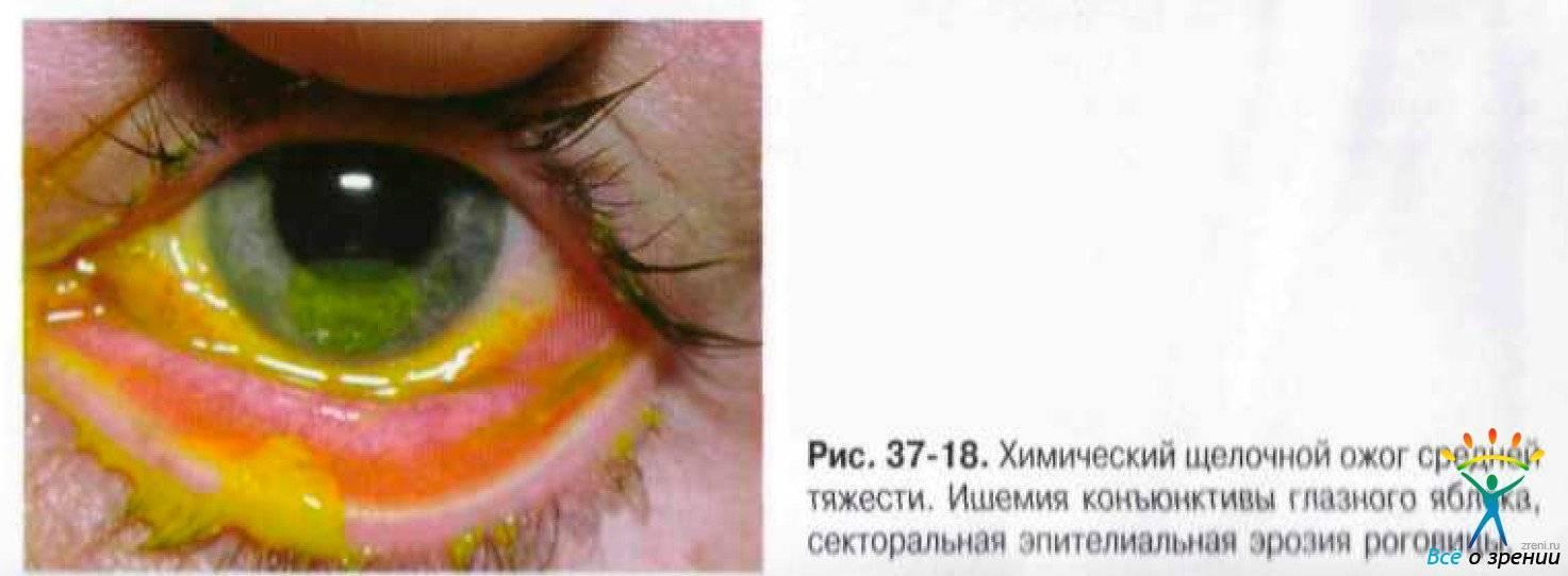 Химический ожог глаз: первая помощь, методы лечения, капли в глаза