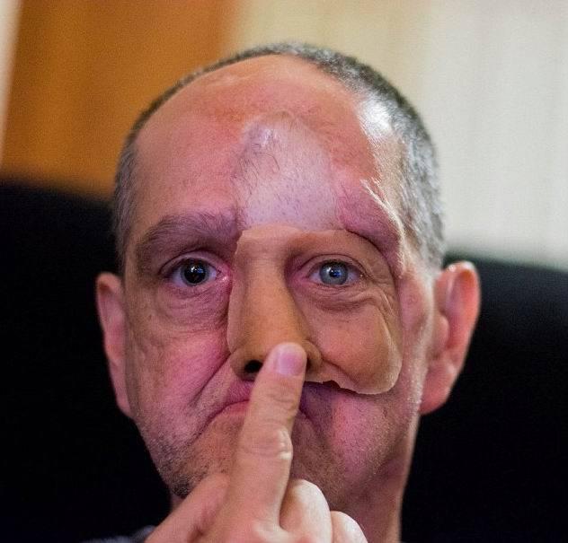 рак слизистой оболочки полости носа