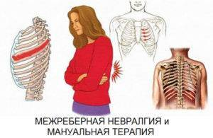 может ли быть температура при межреберной невралгии