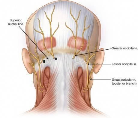 как лечить невралгию затылочного нерва