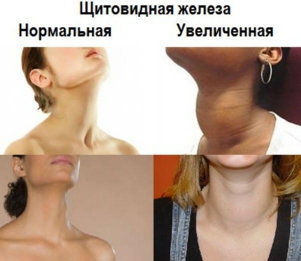 Психосоматика заболеваний щитовидной железы: психосоматические заболевания(причины, таблица), лечение