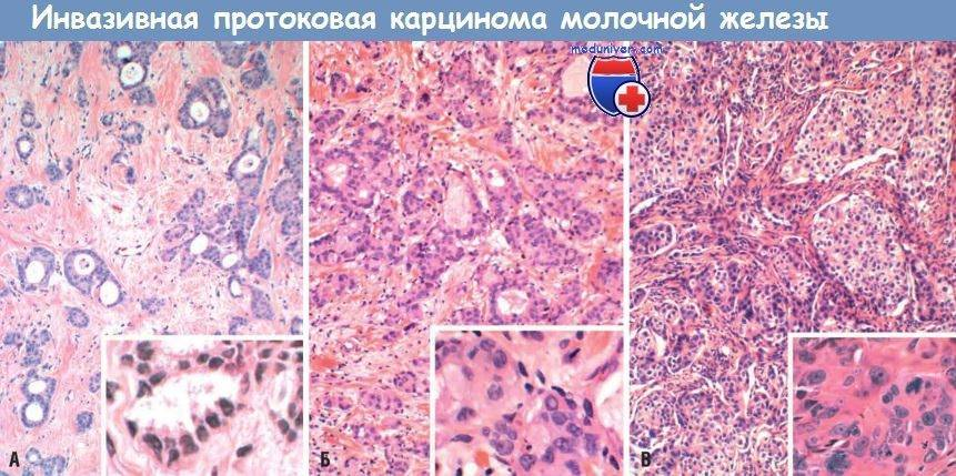 Особенности развития и лечения инфильтративного рака молочной железы