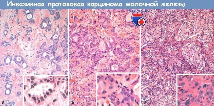 Инвазивная карцинома молочной железы g2 прогноз