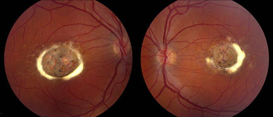 Разрывы сетчатки глаза: причины, симптомы, методы лечения