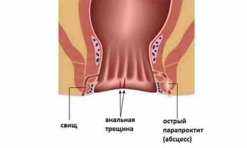 Симптомы и лечение геморроя у детей
